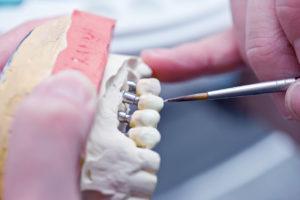Prothèses dentaires conjointes