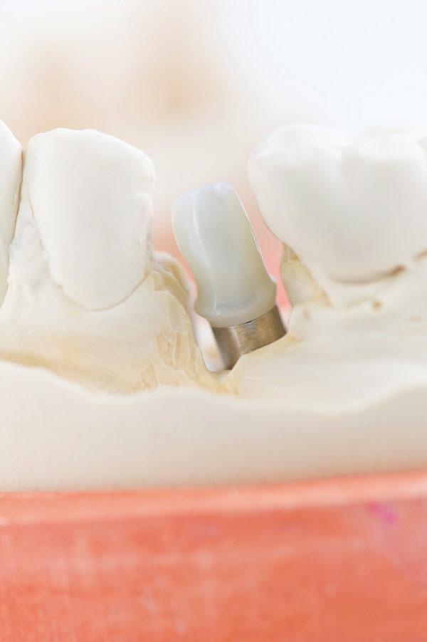 CFAO Implantologie